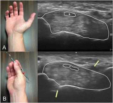 Compression of the median nerve (asterisks) while holding a dental scaling instrument