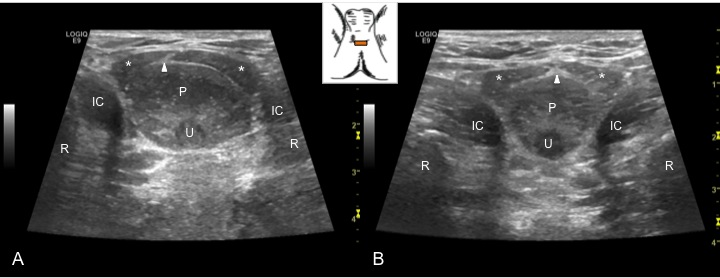 Transperineal sonographic image of the male pelvic floor in two participants, depicting the muscles (ischiocavernosus, IC; bulbospongiousus, asterisk) surrounding the urethera (u) and bulb of the penis (p), and differences in the directionality of the central tendon (arrowhead)